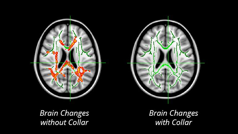 concussion_collar_development_brain_changes